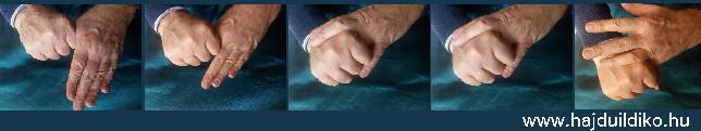 Önkezelés - az energiaáramlások helyreállítása a kezek által